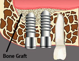 Bone Grafting - Our Dental Implant Services