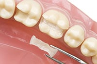 Cosmetic Dentistry - Inlay