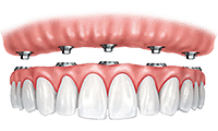 Dentures - Mark A Padolsky, DDS